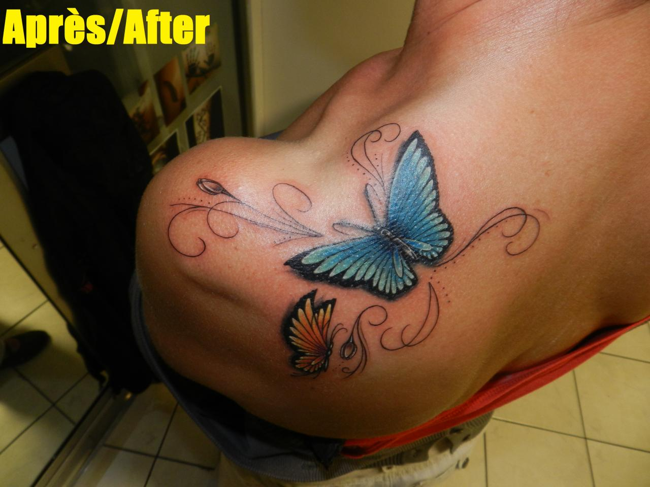 butterfly shoulder after