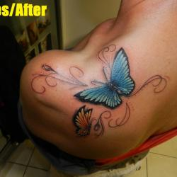butterfly shoulder after