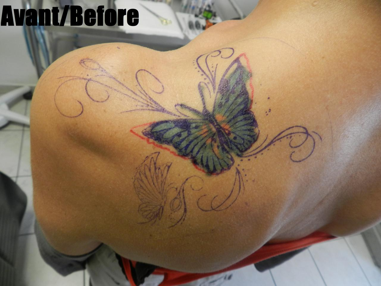 butterfly shoulder before